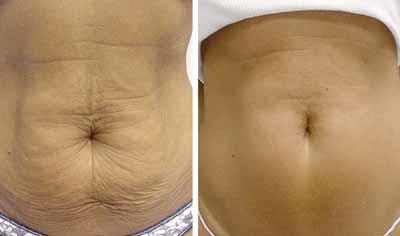 thermage abdomen 1