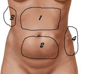 tipos-de-grasa-abdominal